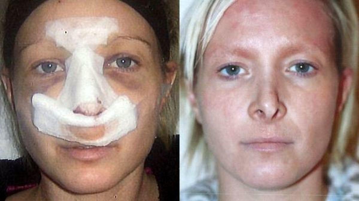 تغییر باورنکردنی فریبا نادری قبل و بعد عمل زیبایی + عکس و فیلم